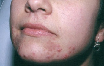 Image result for pimples on mouth and chin